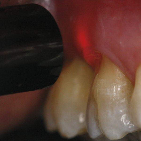 Parodontale micro 2
