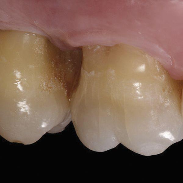 Parodontale micro 3