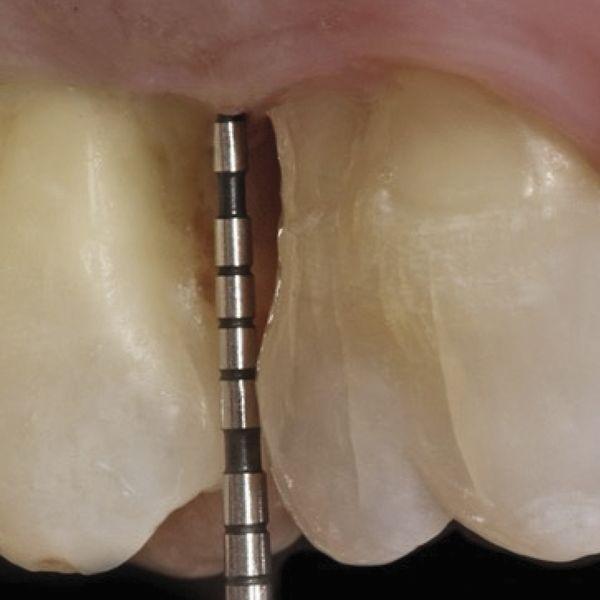 Parodontale micro 4