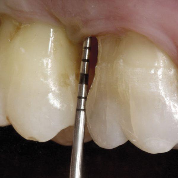 Parodontale micro prima