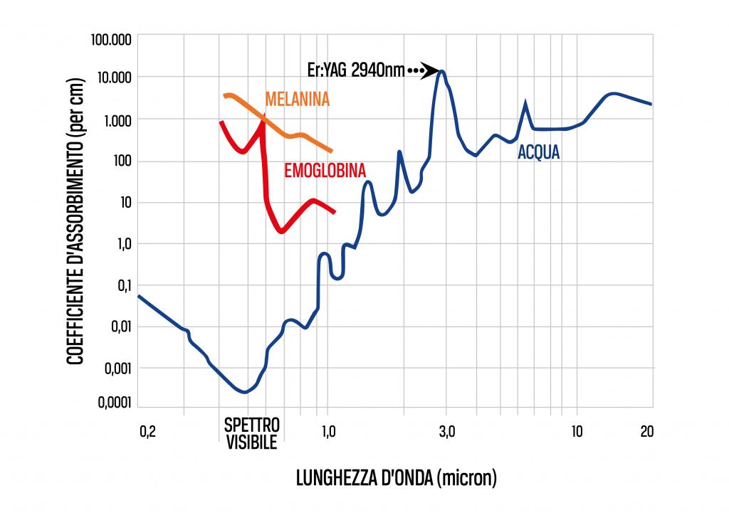 lunghezza d'onda laser 2940nm