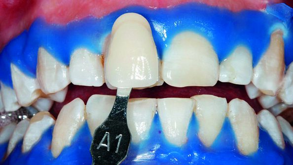 Risuntato di uno sbiancamento dentale con il laser
